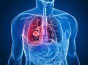 Липома на легких: виды опухоли и методы лечения