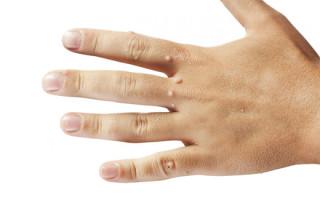 Вульгарные папилломы и бородавки: особенности, причины и методы избавления