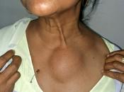 Чем опасно появление липомы на грудной клетке и как избавиться от уплотнения