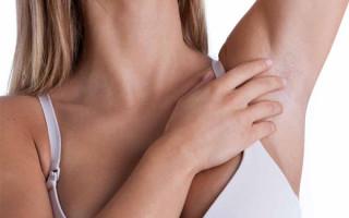 Особенности бородавок под мышками, причины появления и способы удаления