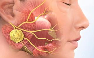 Почему накапливается гной в заглоточной полости: причины абсцесса
