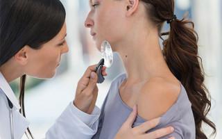 К какому врачу обращаться с папилломами на теле: кто лечит и удаляет наросты
