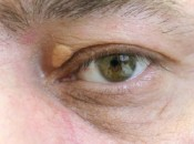 Причины появления жировиков на веках и вокруг глаз