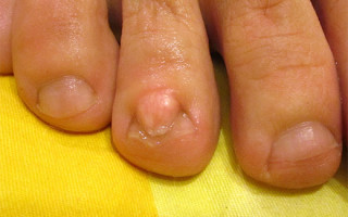 Бородавка под ногтем на руке: причины и домашние методы избавления
