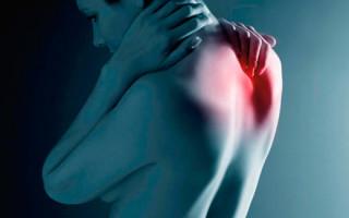 Абсцесс эпидуральной области: причины и как устранить