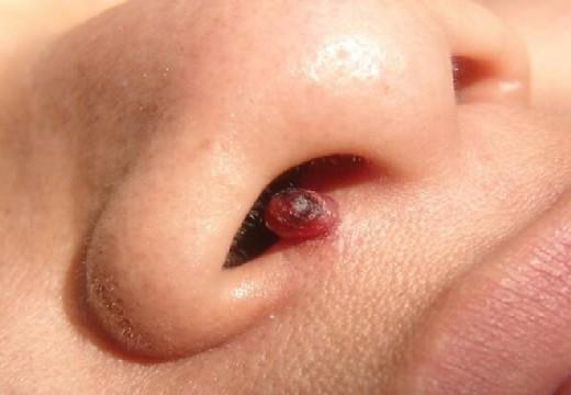 папиллома в полости носа
