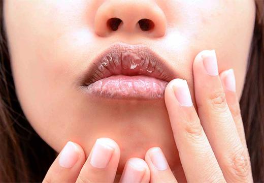 шелушение на губах