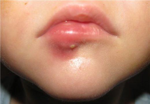 воспаление нижней губы