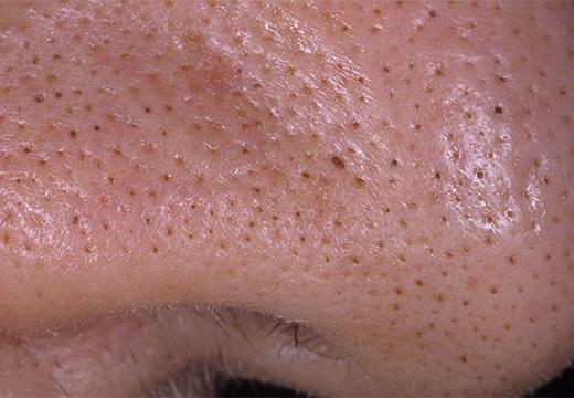 точки на носу
