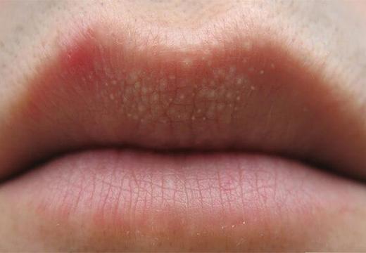 белые точки на губе