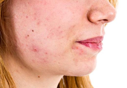 воспаления на коже