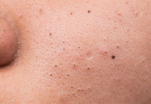 черные точки на коже