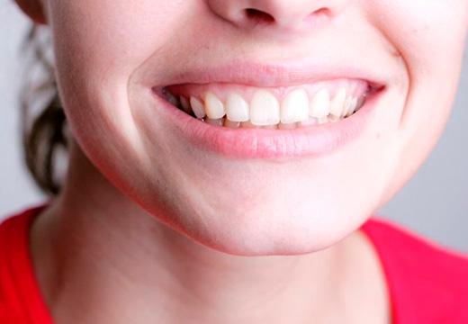 верхние зубы