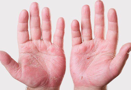 нездоровая кожа ладоней