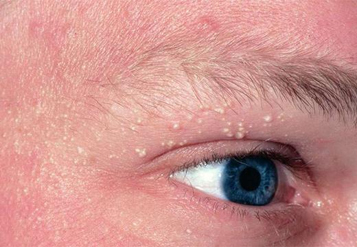 белые пузырьки над глазом