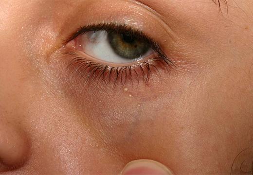 точки возле глаза