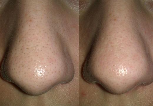 нос до и после
