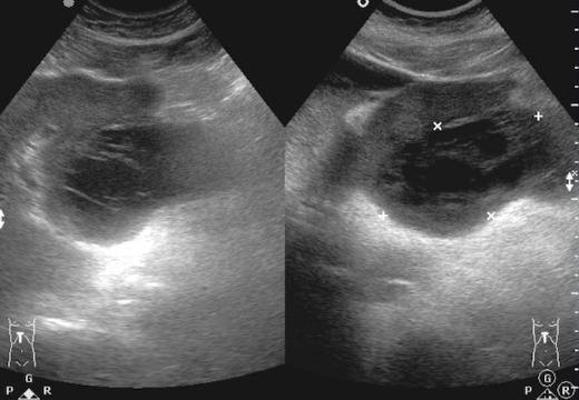 абсцесс брюшной полости на узи