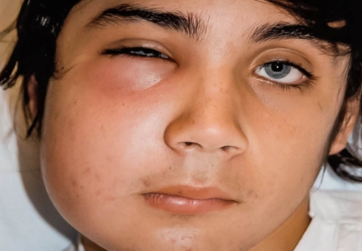 абсцесс щеки у ребенка