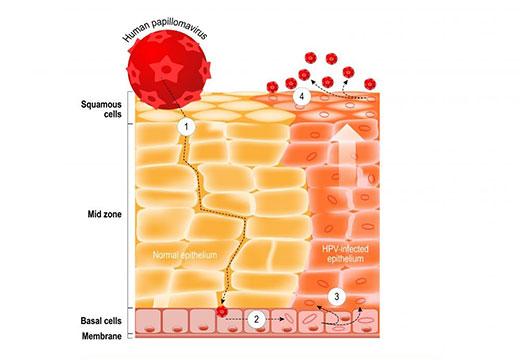 вирус папилломы в крови