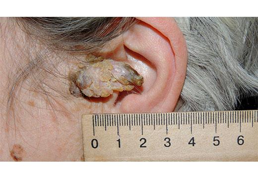 кератопапиллома наружного слухового прохода