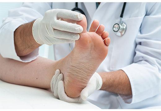 диагностика наростов на ноге