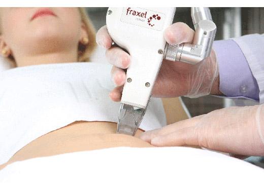 Электрокоагуляция бородавки