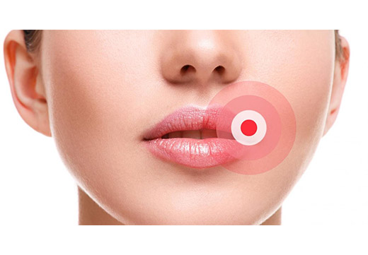 кожный нарост на губе