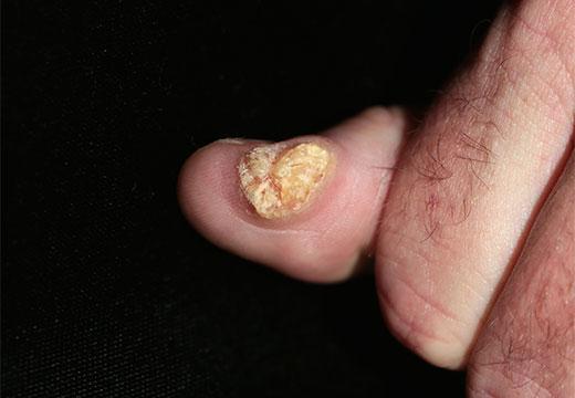 большая бородавка на пальце