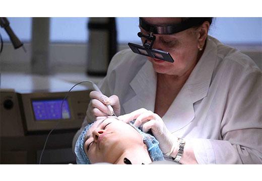 процесс удаления бородавки сургитроном