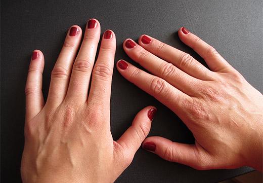 бородавка на пальцах рук