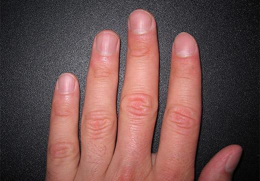 Здоровые ногти без бородавок