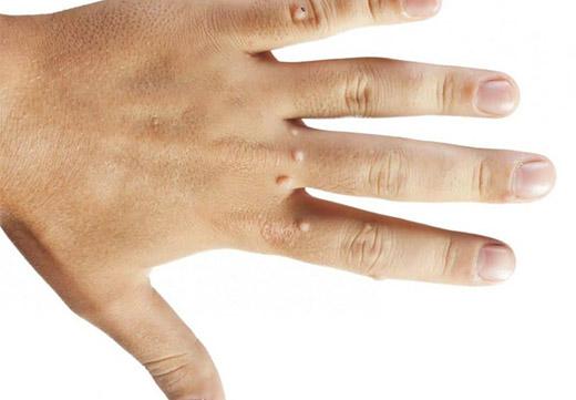 Папиллома на руке