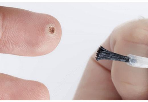 лечение папилломы на пальце