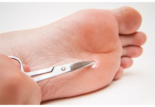 удаление бородавки на ноге