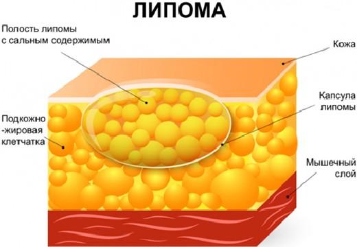 структура липомы