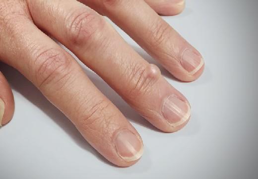 жировик на пальце