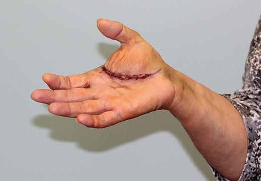 шрам на руке