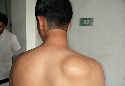 крупная липома на спине