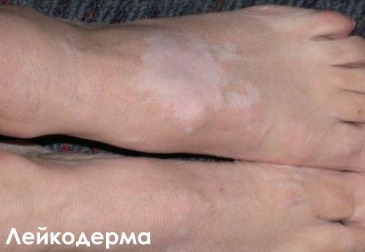 лейкодерма пятна на ноге