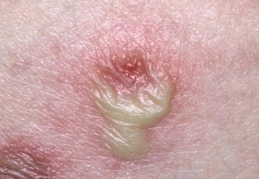 сыпь при пустулезном дерматите