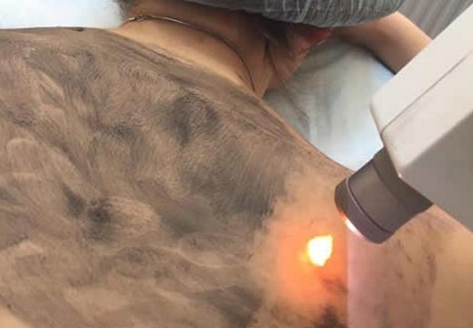 лазерная чистка спины