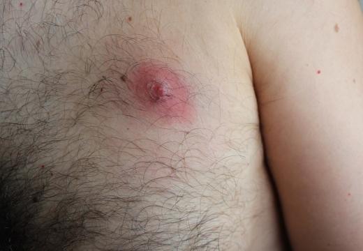 фурункул на груди мужчины