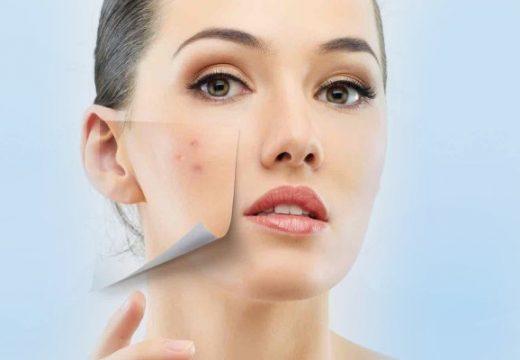 воспаления на лице