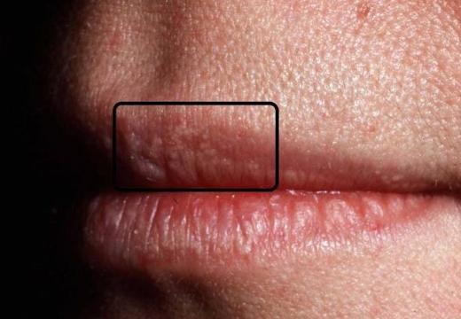 пятна на губах