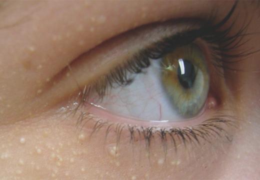 милиумы вокрег глаза