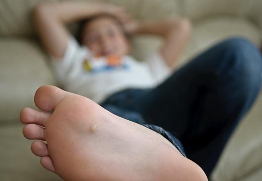 Шипица на ступне ребенка