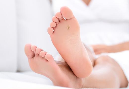 Шпица на ноге