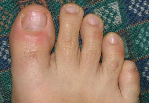 нарыв под ногтем на ноге