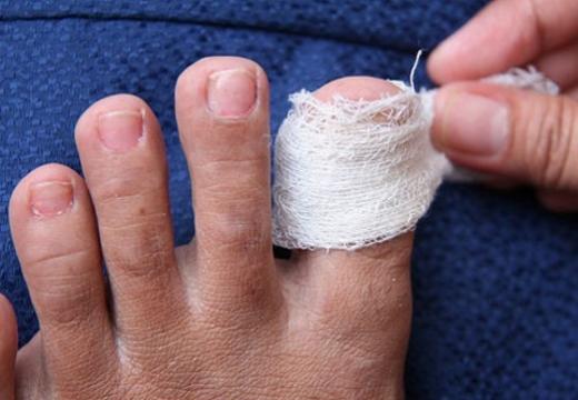 компресс на пальце ноги